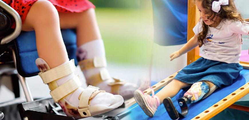 Órteses e próteses: qual a diferença e tipos disponíveis?
